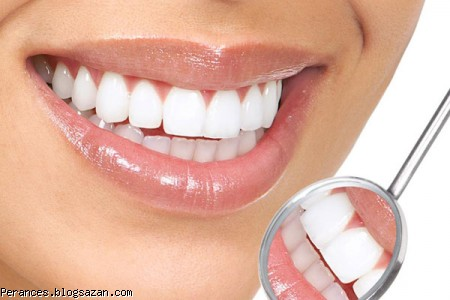 دندان ها سفید,سفید کردن دندان ها در خانه