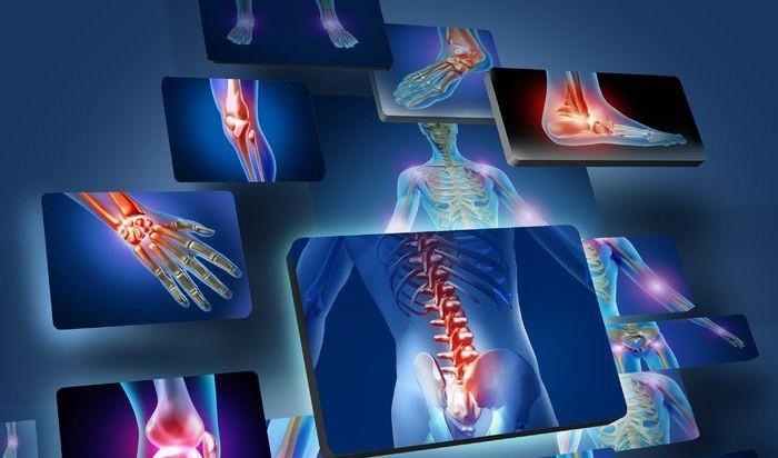 آرتروز: علل ، انواع و روشهای درمانی