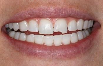 شکستگی و ترک دندان