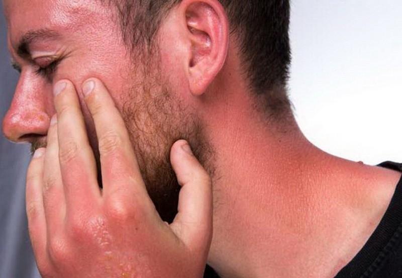 چند راه برای درمان سریع آفتاب سوختگی