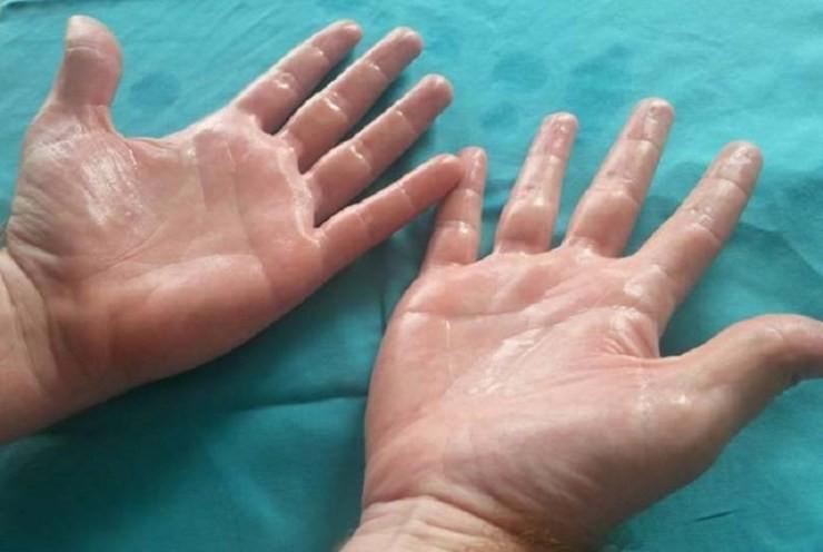 دلایل ، درمان و نکاتی در مورد عرق کردن کف دست