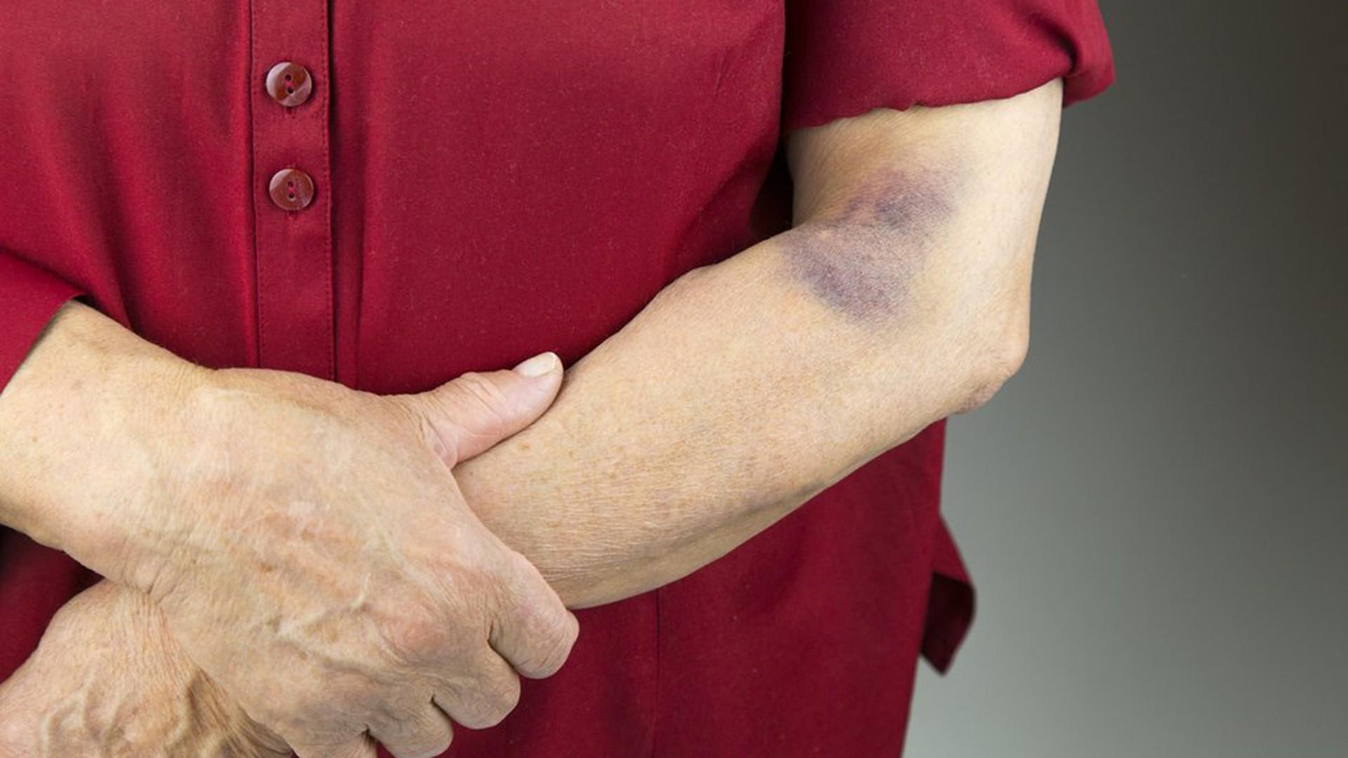 علل و عوامل کبودی و لکه های خونی زیر پوست