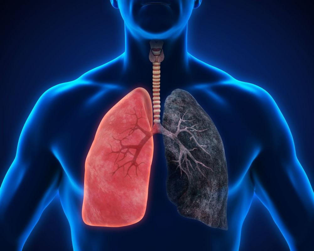 برای کاهش خطر سرطان ریه چه کاری می توانم انجام دهم؟