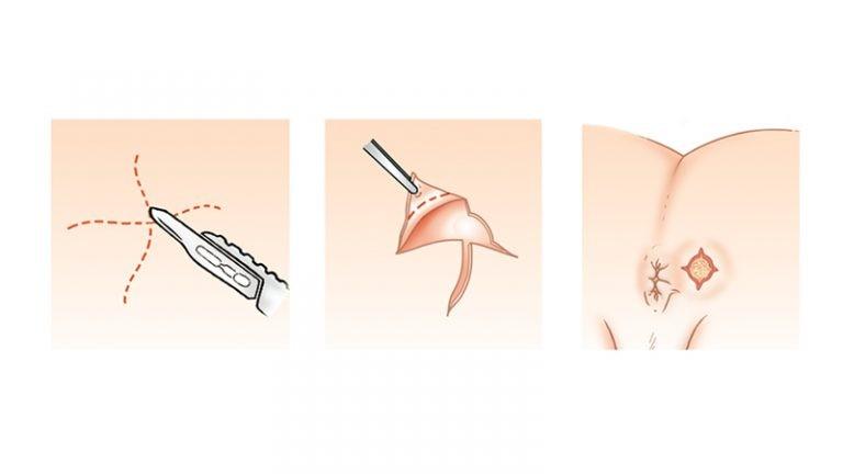 آیا فیستول مقعدی درمان قطعی دارد؟