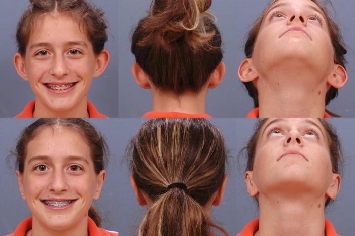 اتوپلاستی (جراحی گوش) چیست؟ زمان بازیابی و خطر
