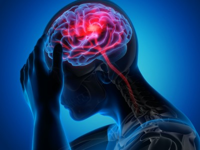 سکته مغزی: علائم ، علل ، تشخیص و درمان