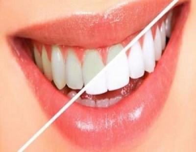 هفت روش خانگی سفید کردن دندان