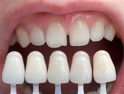 آشنایی با انواع روکش دندان