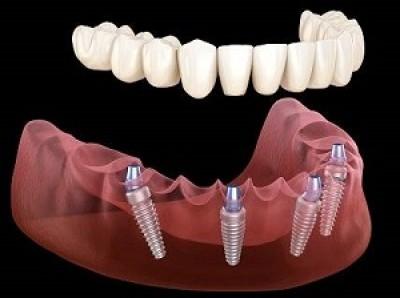 آشنایی با ایمپلنت دندان