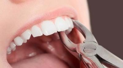کشیدن دندان و عوارض آن
