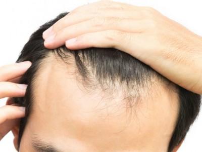 برای داشتن موهای سالم چه غذاهایی مصرف کنیم.