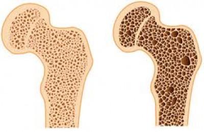 عواملی که سبب تشدید پوکی استخوان مشود