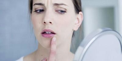 رفع و درمان تبخال با روش های خانگی