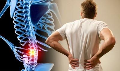 چگونه کمر درد را در خانه درمان کنیم