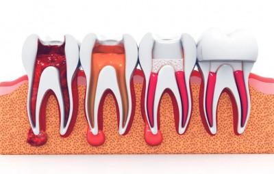 چرا تمیز کردن و فرم دهی دندان ها در RCT مهم است؟