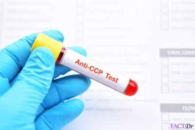 آزمایش خون برای RA (آرتریت روماتوئید) و دیگر بیماریهای خودایمنی