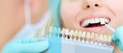 روکش های دندان: موارد استفاده از روکش های پرسلن ، روش کار