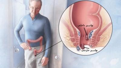 درمان بواسیر (هموروئید) با لیزر، سریع و قطعی بدون عمل جراحی