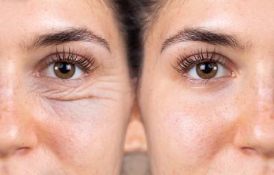 درمان خطوط پنجه کلاغی دور چشم