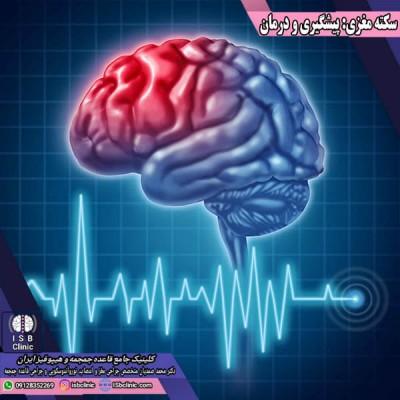همه چیز درباره سکته مغزی و درمان آن
