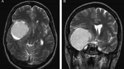 تومور مننژیوم مغزی | جراحی، بهبود و درمان مننژیوم مغزی